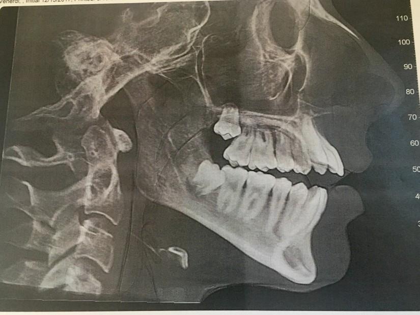 CT scan .jpg
